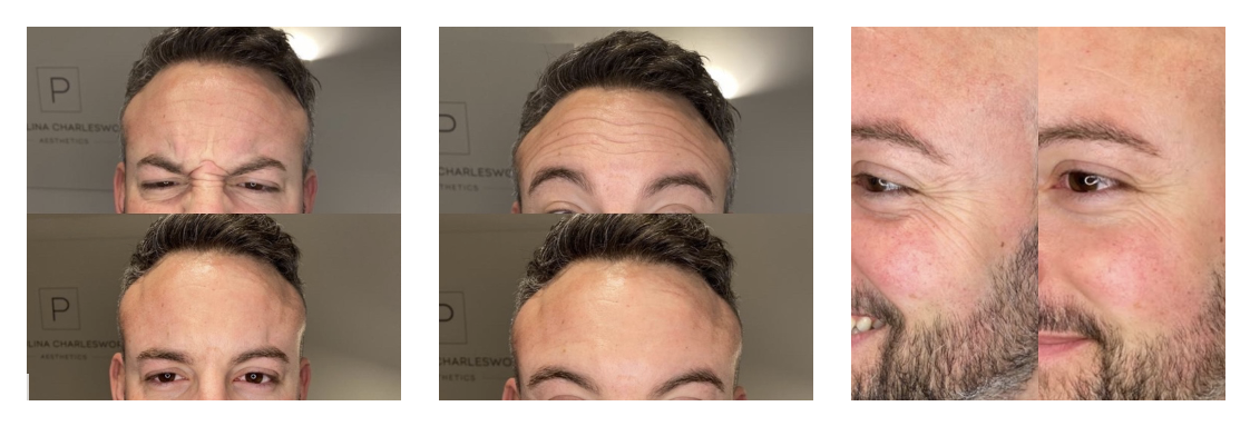 Before and after picture of 'Botox' wrinkle injections in men in Sevenoaks Kent