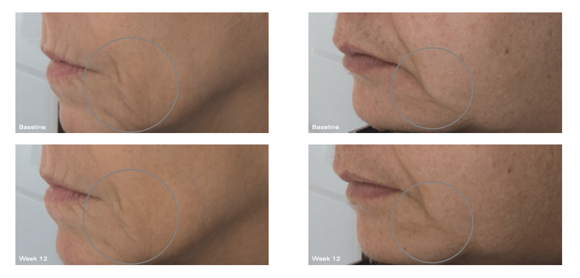 Firming-Serum-before-and-after-picture.png#asset:721