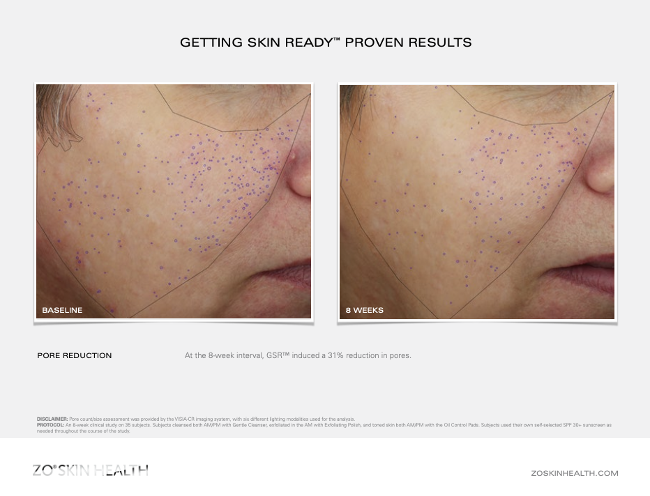 Dr Obagi ZO® Skin Health Getting Skin Ready Before and After pictures & results