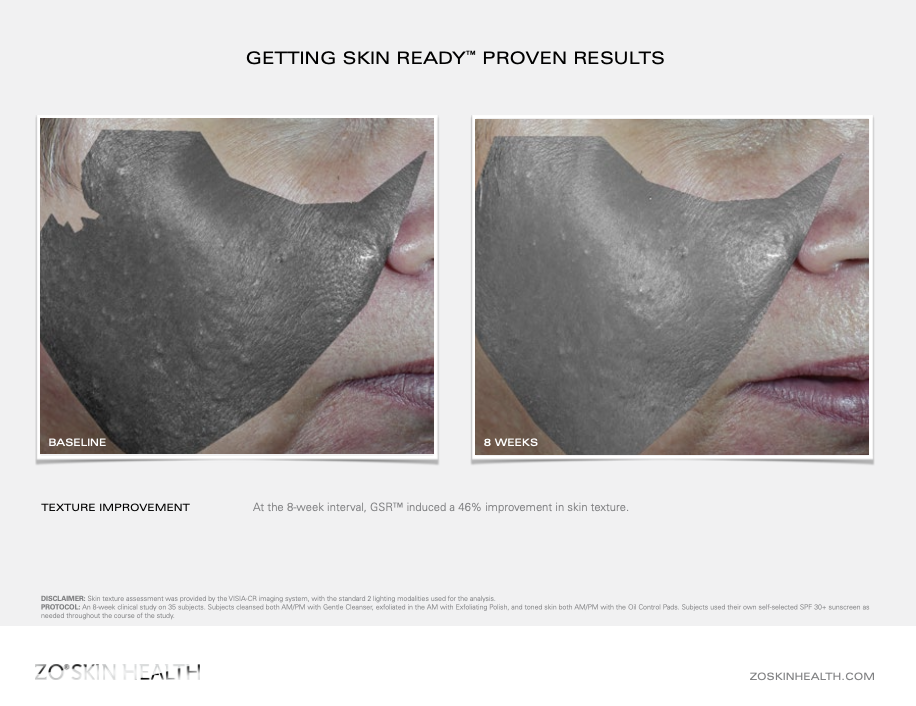 Dr Obagi ZO® Skin Health Getting Skin Ready Before and After pictures & results 2