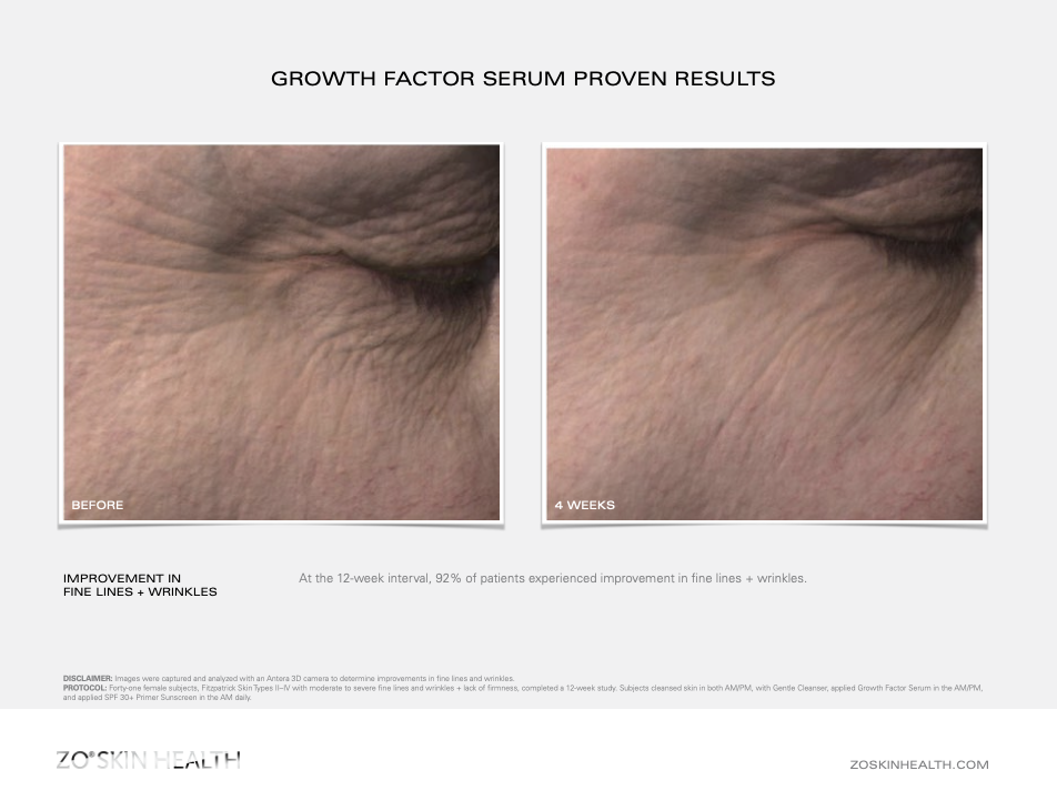 Step 2: Dr Obagi ZO® Daily Power Defense and Growth Factor Serum Before and after pictures & results 2