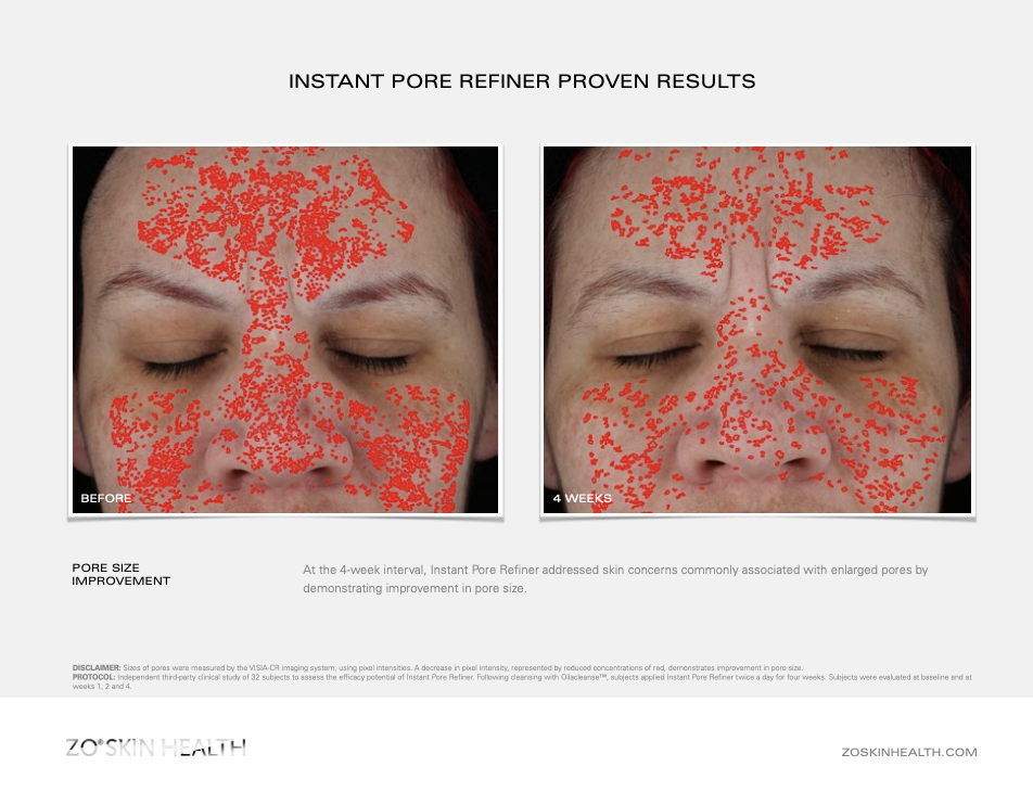 Dr Obagi ZO® Skin Health Instant Pore Refiner Before and After Pictures 2