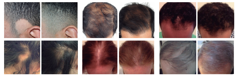 Microneedling-before-and-after-different-patterns-of-hair-loss.png#asset:575
