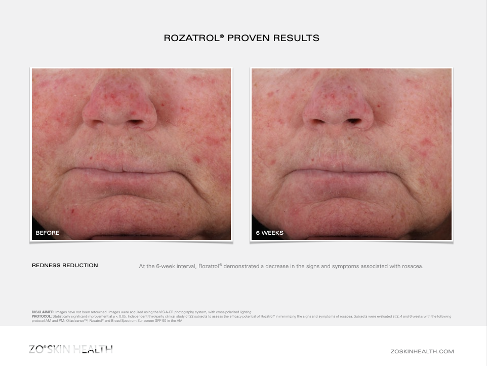 Dr Obagi ZO® Skin Health Rosacea and Redness Rozatrol® Before and After Pictures 2