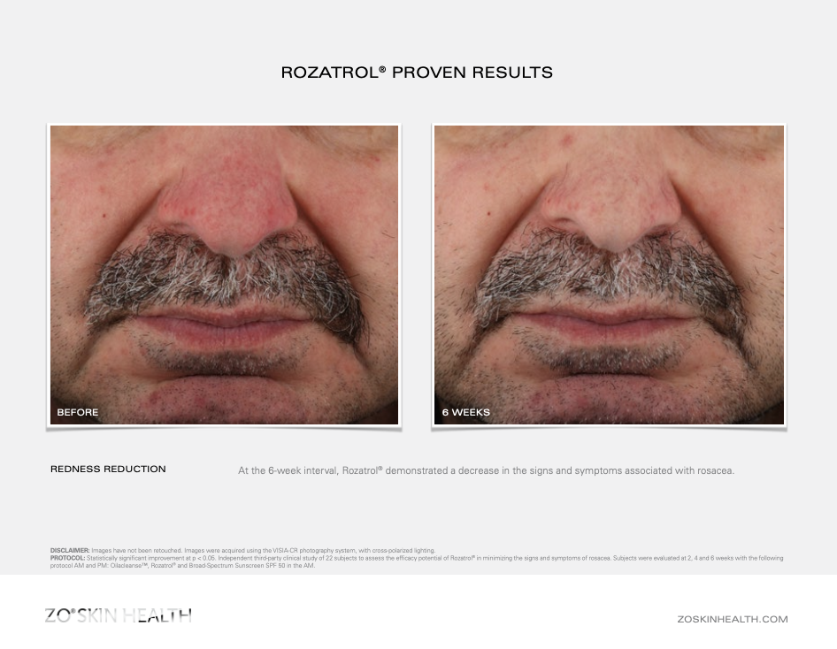 Dr Obagi ZO® Skin Health Rosacea and Redness Rozatrol® Before and After Pictures 3