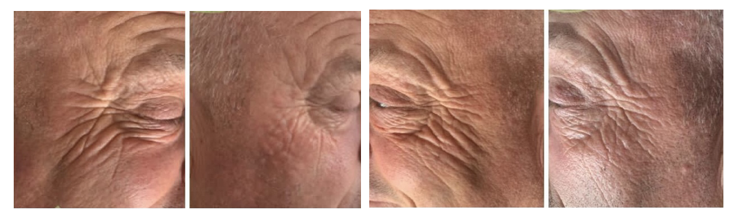 Before and after skin booster Redensity wrinkle injections in men in Sevenoaks Kent