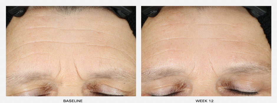 Dr Obagi ZO® Wrinkle +Texture Retinol Before and After Pictures 2