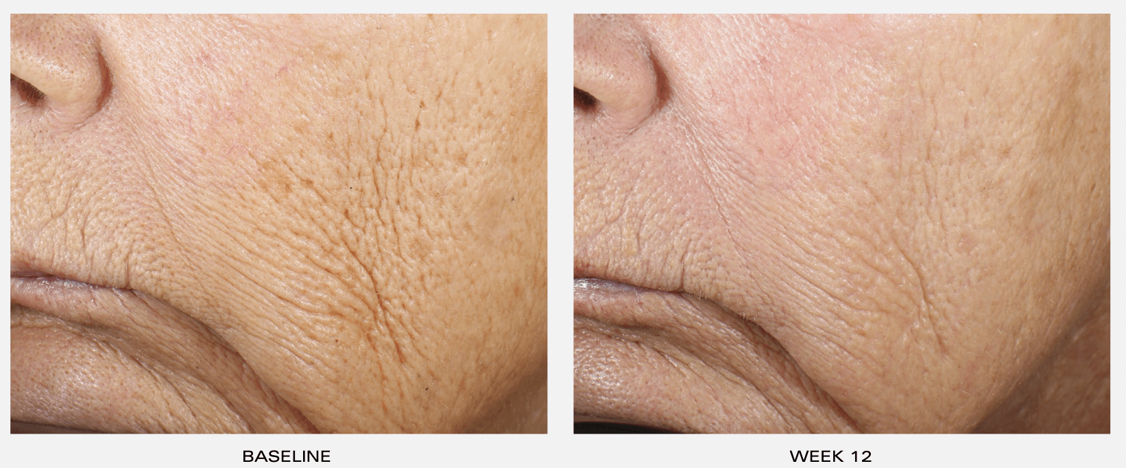 Dr Obagi ZO® Wrinkle +Texture Retinol Before and After Pictures